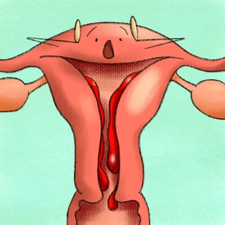 Abnormal Uterine Bleeding Artwork