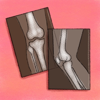 Knee X-rays Artwork