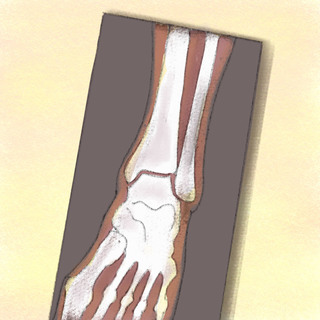 Ankle Injuries: Salter I or Sprain Artwork