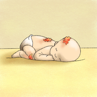 Bad Newborn Rashes, Part 1 Artwork